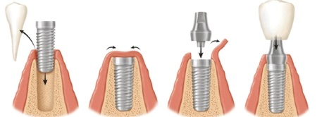 implant dentaire tunisie procedure