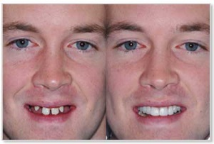 implant dentaire Turquie avant apres