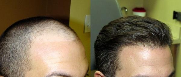 greffe cheveux tunisie avant apres