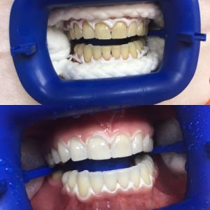 blanchiment dentaire au fauteuil
