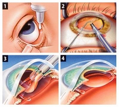 cataracte etapes