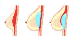 augmentation mammaire Tunisie emplacement