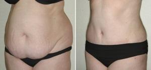 abdominoplastie liposuccion