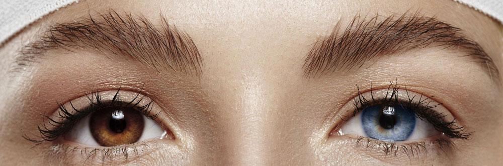 keratopigmentation changement couleur yeux